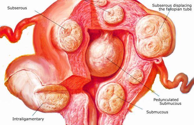 tratament menstruatie abundenta