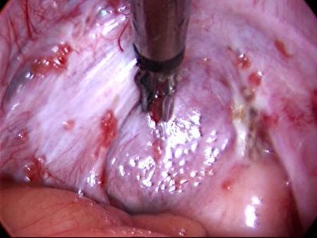 laparoscopie pelviana normala