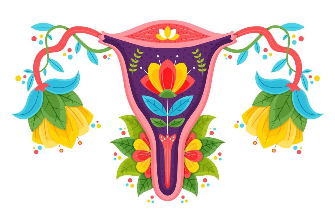 embolizare fibrom uterin