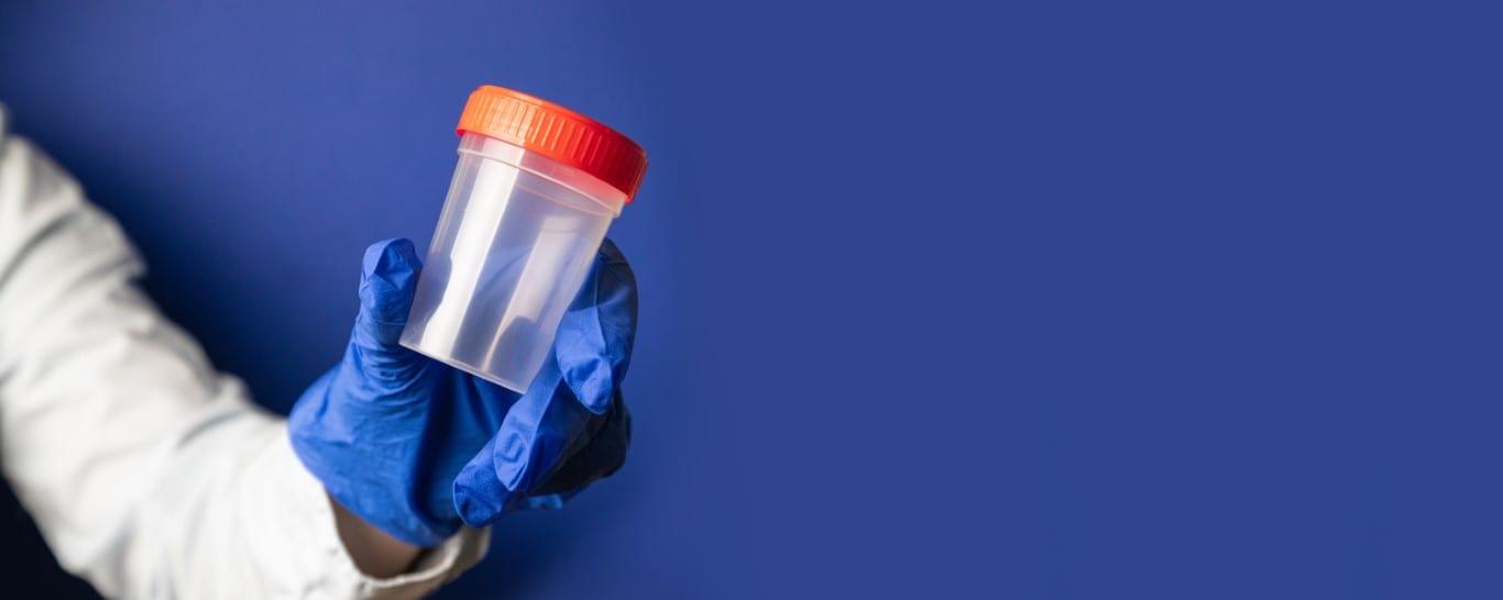 diagnosticare infectii urinare in sarcina